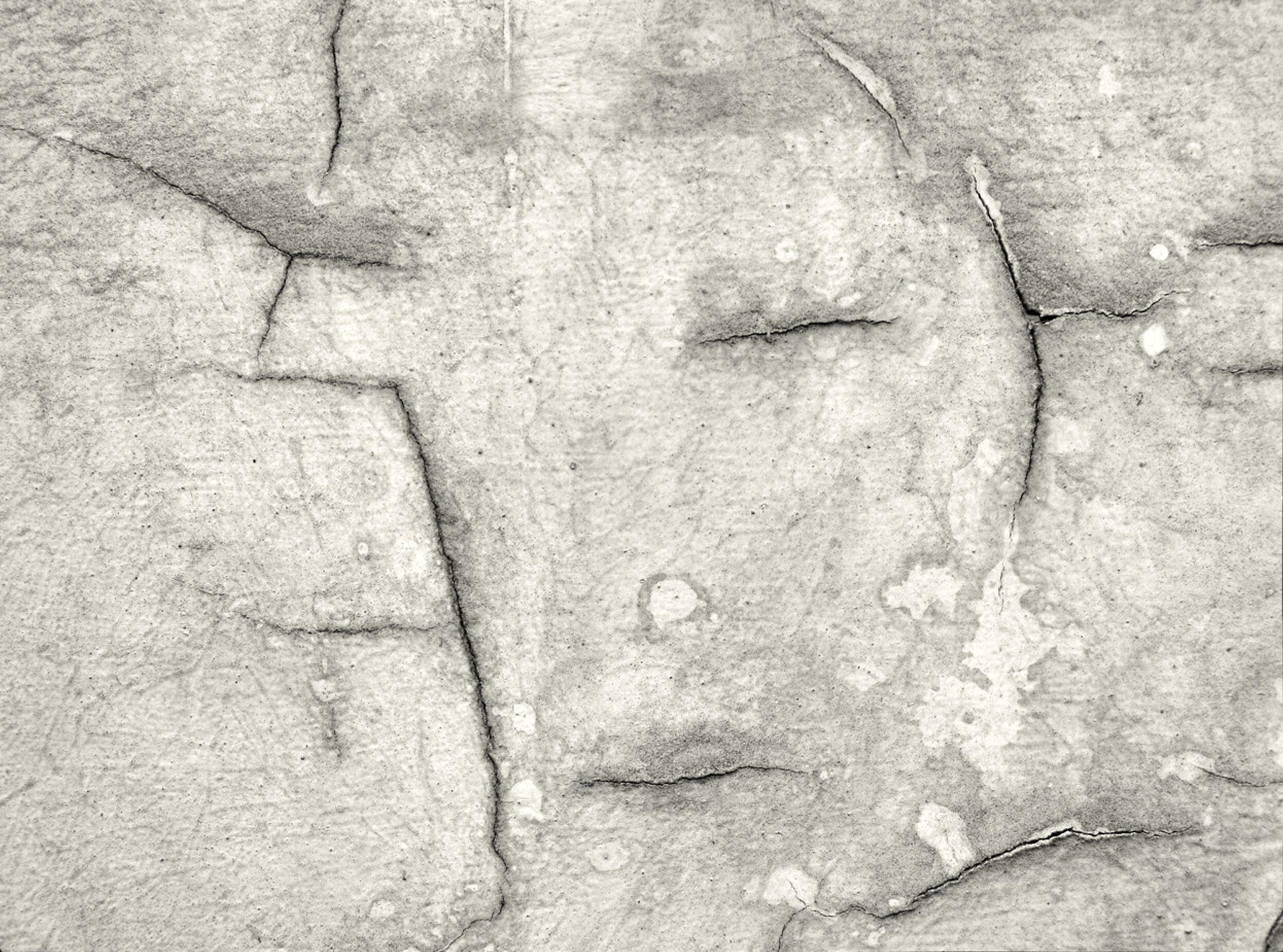 Stress e Fibromialgia